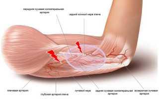 Лечебные меры при защемлении нерва в плечевом суставе