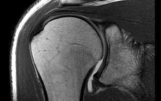 Обследование плечевого сустава с помощью МРТ