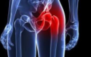 Причины и лечение боли тазовых костей после родов