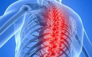 Основные симптомы и опасность грудной миелопатии