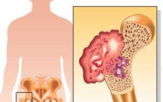 Почему возникает саркома бедренной кости и как ее убрать?