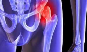 Действенные обезболивающие при артрозе коленного, тазобедренного, плечевого суставов