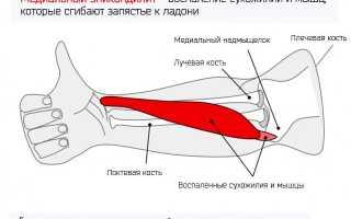 Проявление медиального эпикондилита локтевого сустава