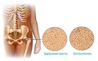 Что такое остеопения, как определить и лечить болезнь