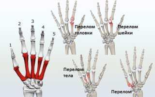 Типы перелома пястной кости и методы лечения