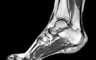 Как делают магнитно-резонансную томографию стопы?