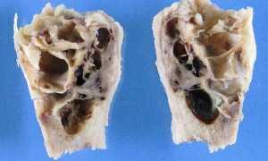 Симптомы развития костной кисты и способы ее лечения