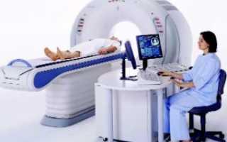 Проведение компьютерной томографии позвоночника