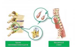 Признаки мышечно-тонического синдрома и его лечение