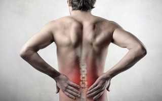 Что делать при боли в пояснице после поднятия тяжести?