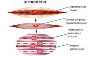 Проявление миофасциального болевого синдрома и его лечение