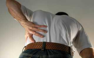 Выбираем мазь от боли в спине при защемлении нерва в пояснице