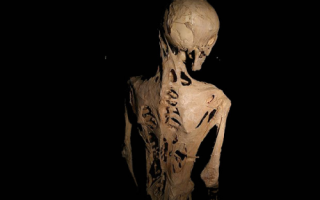 Чем опасно развитие оссифицирующей фибродисплазии?