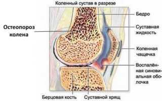 Симптомы и лечение остеопороза коленного сустава 1-4 степени
