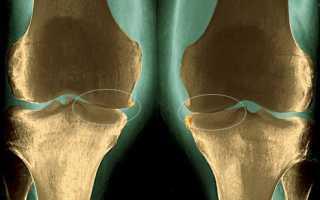 Эффективные лекарства для лечения артроза
