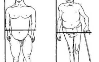Виды и особенности лечения хондродистрофии у детей