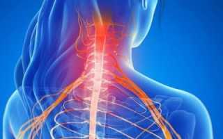 Миелопатия спинного мозга, виды и методы лечения
