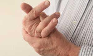 Лечим синдром щелкающего пальца в домашних условиях
