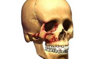 Первая помощь при переломе скуловой кости и ее лечение