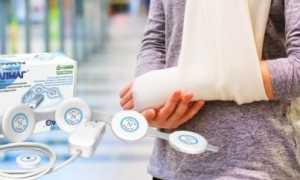 Помогает ли аппарат Алмаг-01 при переломах костей?