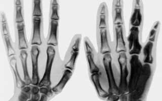 Что такое остеосклероз и как лечить уплотнение костей?