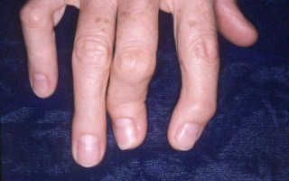 Характерные симптомы полиостеоартроза и его лечение