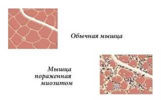 Как лечить миозит мыщц острого и хронического типа?
