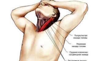 Что делать при растяжения связок и мышц шеи?