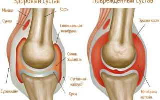 Артрит колена у детей: симптомы и лечение