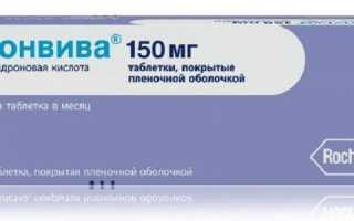 Бонвива — эффективный препарат при остеопорозе
