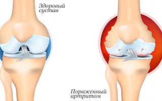 Питание при артрите суставов