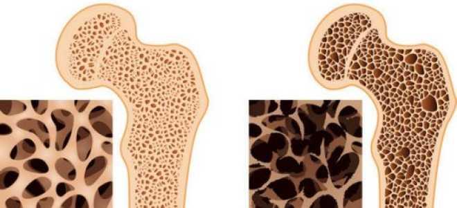 Какие анализы используют для диагностики остеопороза?