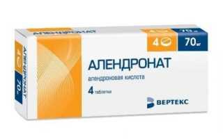 Как применять Алендронат при лечении остеопороза?