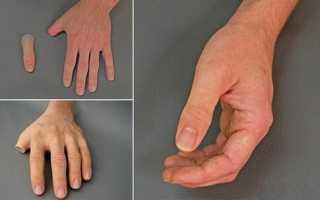 Особенности протезирования пальцев рук и ног