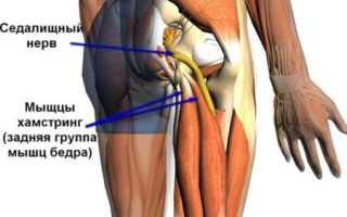 Почему болит тазобедренный сустав и отдает в ногу?
