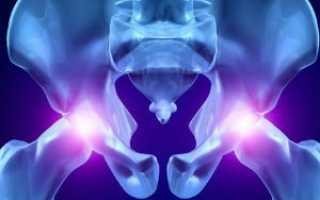 Проведение рентгенограммы тазобедренного сустава