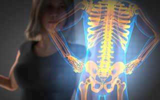 Что такое диффузный остеопороз?