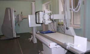 Что показывает рентгенограмма плечевого сустава?