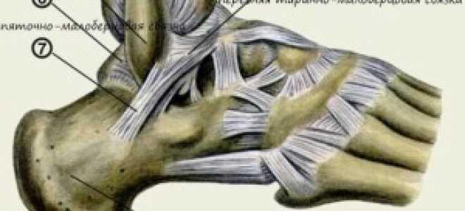 Что делать при растяжении связок лодыжки (щиколотки)