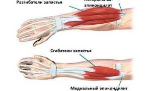 Список мазей для лечения эпикондилита локтевого сустава