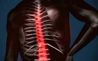 Что такое остеофиты и как с ними бороться?