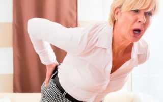 Способы лечения защемления нерва в области копчика