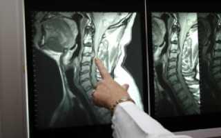 Компьютерная томография грудного отдела позвоночника