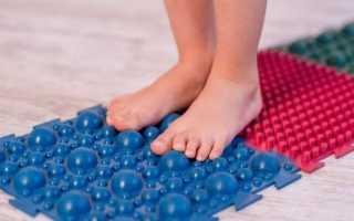 Ортопедический коврик при плоскостопии у детей