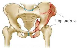 Лечебные меры при переломе подвздошной кости таза