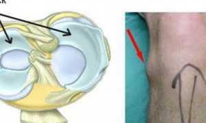 Диагностика и лечение кисты мениска коленного сустава