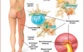 Лечение вертеброгенной люмбоишиалгии