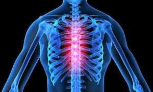 Симптомы и лечение грудного радикулита