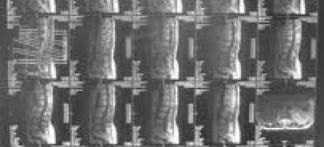 Фораминальная протрузия межпозвонкового диска