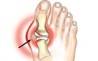 Как лечить артрит большого и других пальцев ноги?